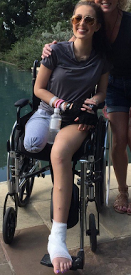 Amputee girls displays her Beauty and Strength