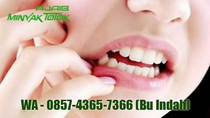 0857-4365-7366 (Isat)  Minyaktotokajaib Manjur menghilangkan Sakit Gigi