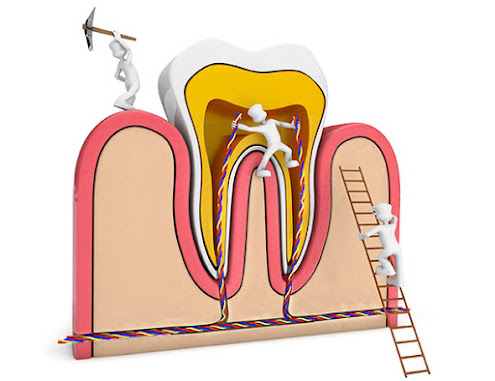 what is root canal treatment