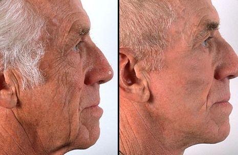 Decrease Eye Wrinkles Naturally