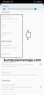 Cara membuat Config KPN Tunnel OMG Telkomsel