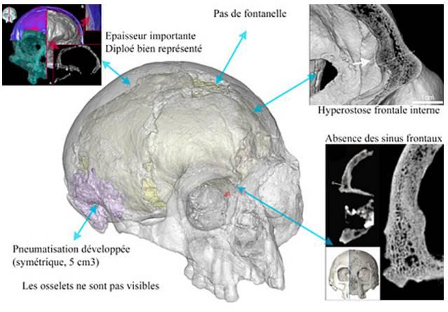 Revisión de algunas de las características internas de Liang Bua 1 sobre el espesor craneal y la estructura interna.