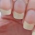 Móng tay xuất hiện đốm trắng báo hiệu điều gì?