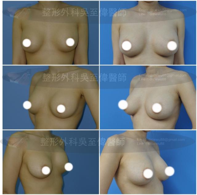 莢膜攣縮隆乳重做案例