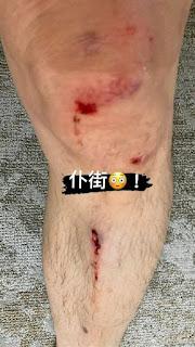 tai nạn khi đi xe đạp! Những bức ảnh về vết thương kinh dị được phơi bày