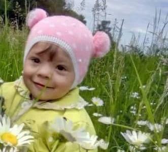 В Украине после 2 недель мучений от ожогов скончалась 2-летняя Леся Горова