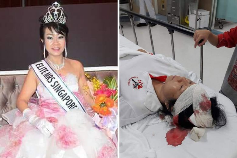 Madam Cassandra Ho, who was crowned Elite Mrs Singapore Asean in 2016 (left), was taken to Tan Tock Seng Hospital after she was hit by an e-scooter.