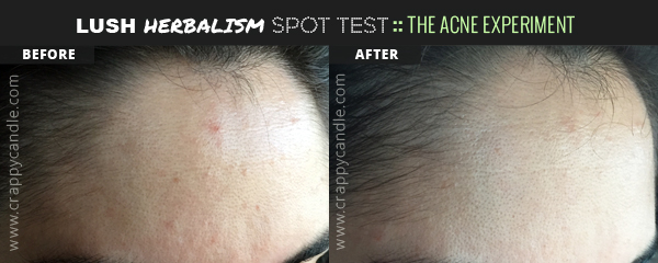 Lush Herbalism Spot Test Before and After - The Acne Experiment