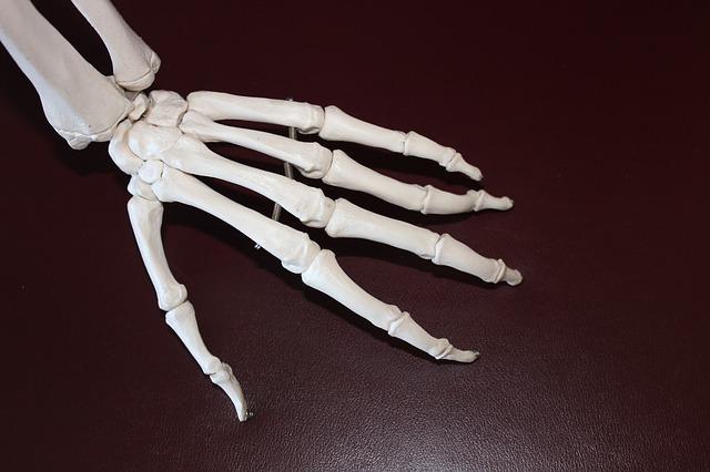 What causes arthritis