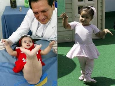 Milagros Cerrón, conosciuta come la Sirenetta, prima e dopo l'intervento chirurgico eseguito per correggere la sua sirenomelia in Perù.