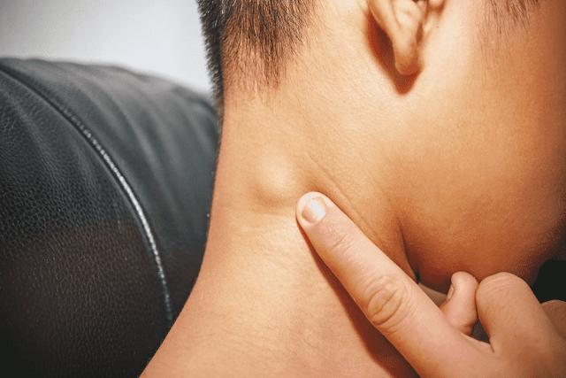 5 Fakta Kanker Kelenjar Getah Bening