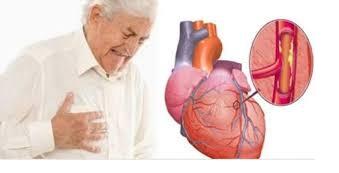 Frutablend HWI Solusi Untuk Penyakit Jantung