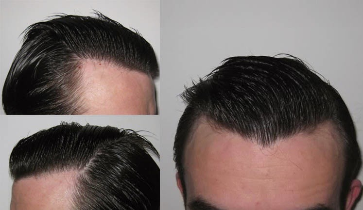 Related Items Before After Results Cl 2 Baldness Dr Alan Feller Fue Hair Transplant Hairline Male