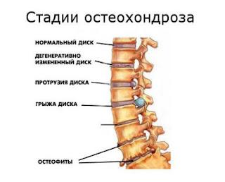 Остеохондроз шейного отдела позвоночника в Одессе: симптомы, диагностика, лечение