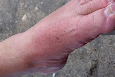 The mark on my foot from the Sting Ray