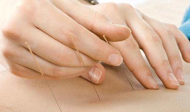 Manfaat Akupuntur untuk Asam Urat