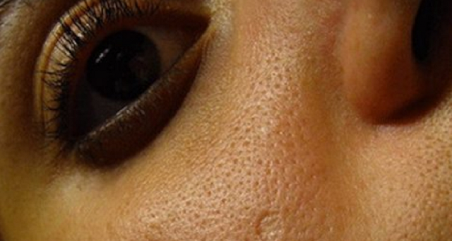 طريقة جديدة لغلق مسام و ثقوب الوجه و القضاء على حب الشباب