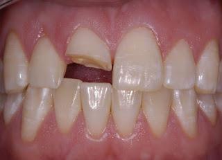 Gãy răng cửa phải làm sao để khắc phục?