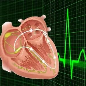 اسباب تسرع دقات القلب وعلاجها