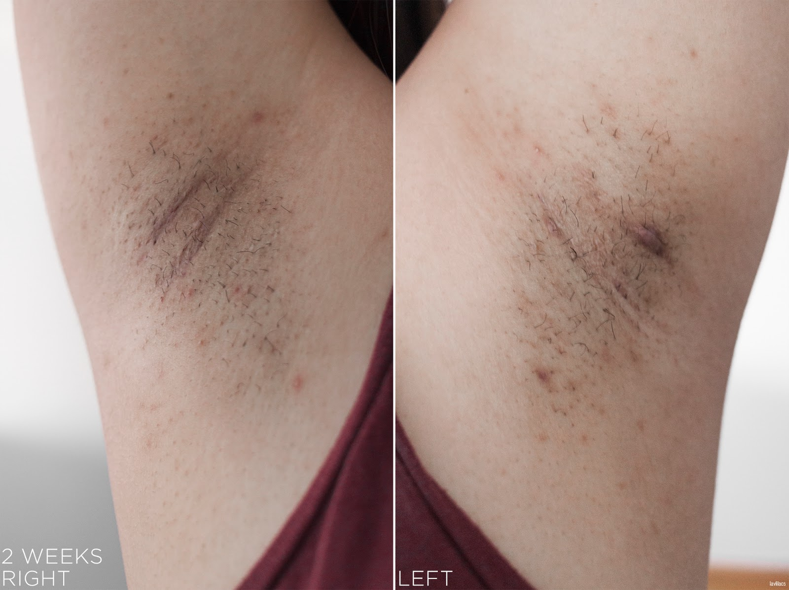 tria Hair Removal Laser Armpits Hair 2 Weeks