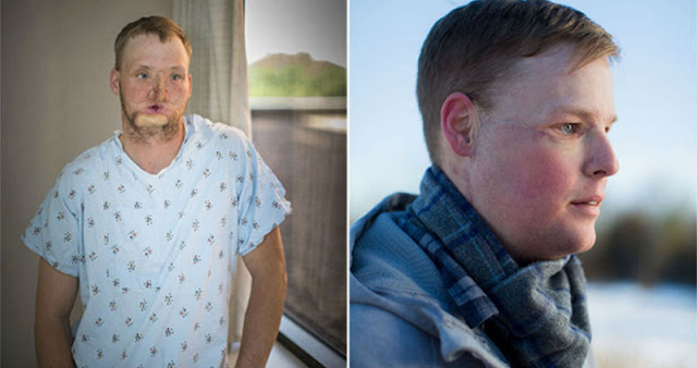 Неудавшемуся самоубийце пересадили лицо, и у него началась новая жизнь!