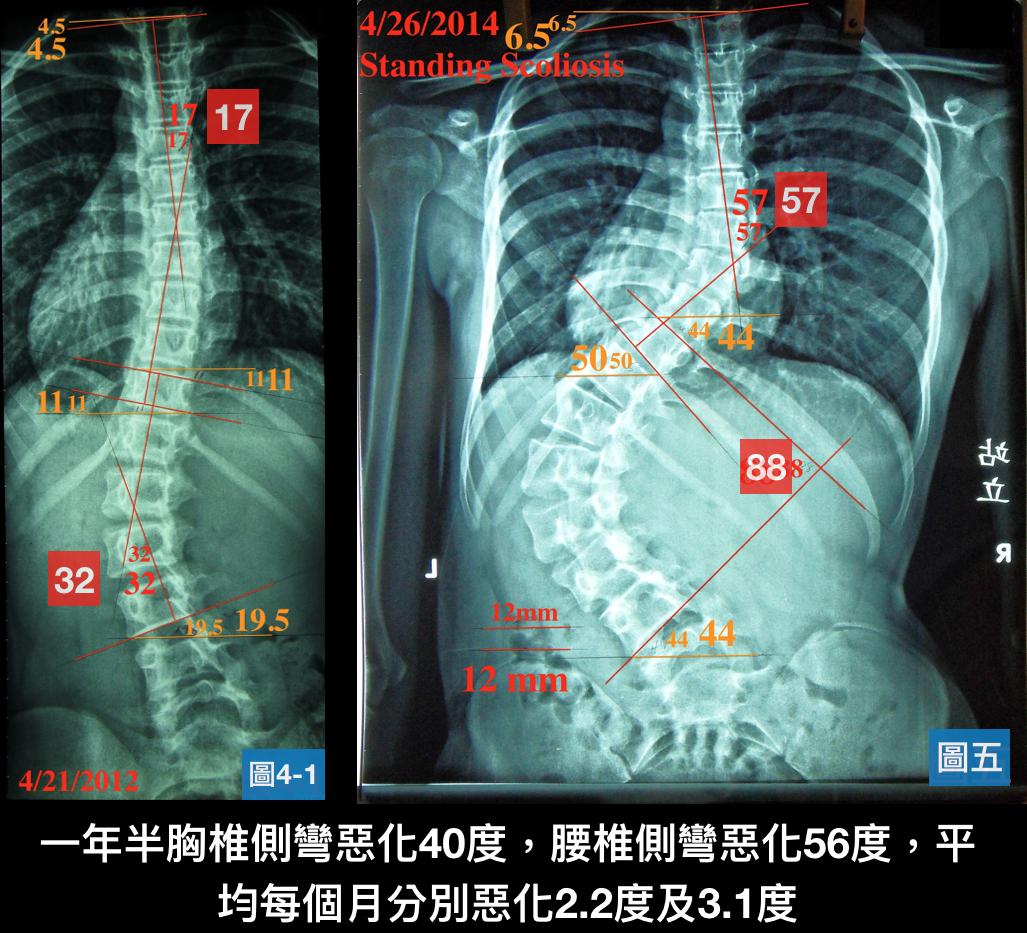 可怕的脊椎側彎-別讓自己活在後悔中 - 閻曉華脊骨神經醫學網