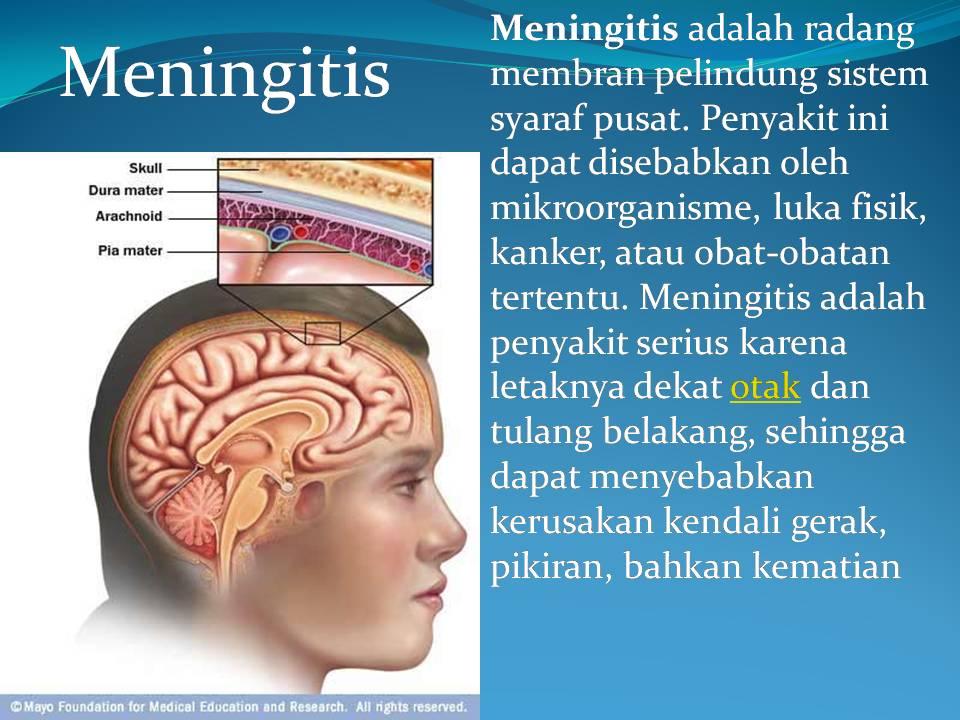 Penyebab, Gejala, dan Pengobatan Penyakit Meningitis