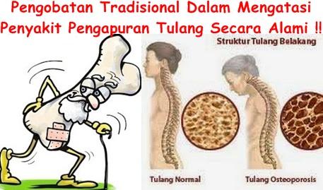Obat Tradisional Tuntaskan Pengapuran Tulang