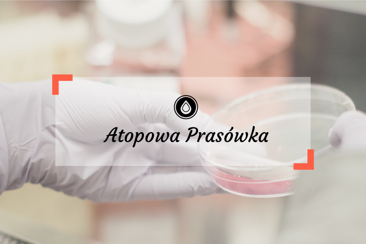Atopowa prasówka 3/2017 | Atopowe zapalenie skóry - aktualne wytyczne terapeutyczne