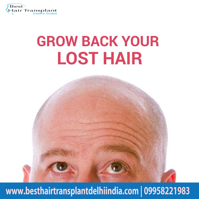 hair surgery, hair transplant, scalp reduction, hair loss, best hair surgeon, hair surgery cost, best hair clinic delhi