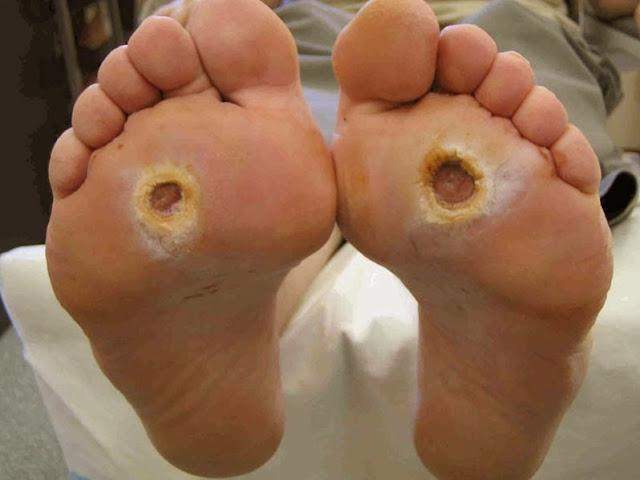 ulser kaki, luka kencing manis, rawatan ulser kaki, foot ulcer, foot ulcer infection, foot ulcer types, jangkitan ulser kaki, jenis ulser kaki