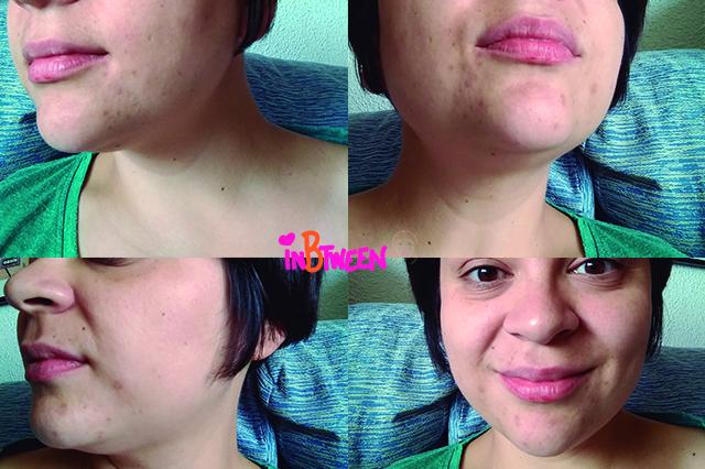 #PeelingRevitaliftLaser, fblogger, blogger, beauty blogger, skincare, L'roeal,