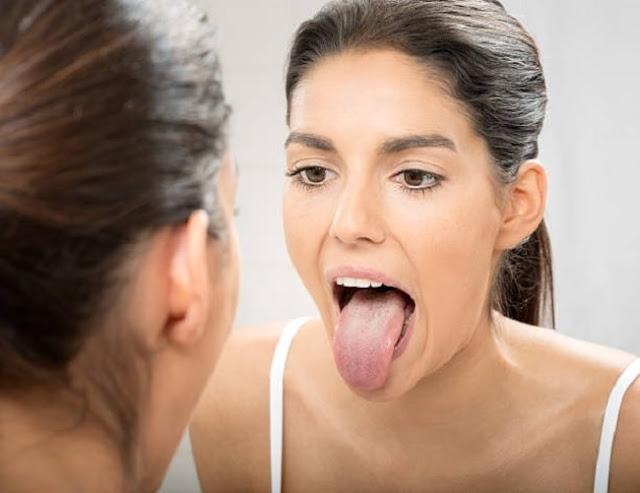 ¿Te está creciendo pelos en la lengua? Esto es lo que podría estar pasando...