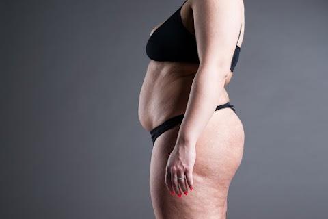 Megduzzasztja a zsírsejteket a hidrokoleszterin: így tehetsz az ellen, hogy túl sok legyen belőle a véredben