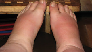 Swollen Feet and Ankles Causes