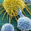 Como novos testes podem ajudar a tratar câncer sem origem conhecida
