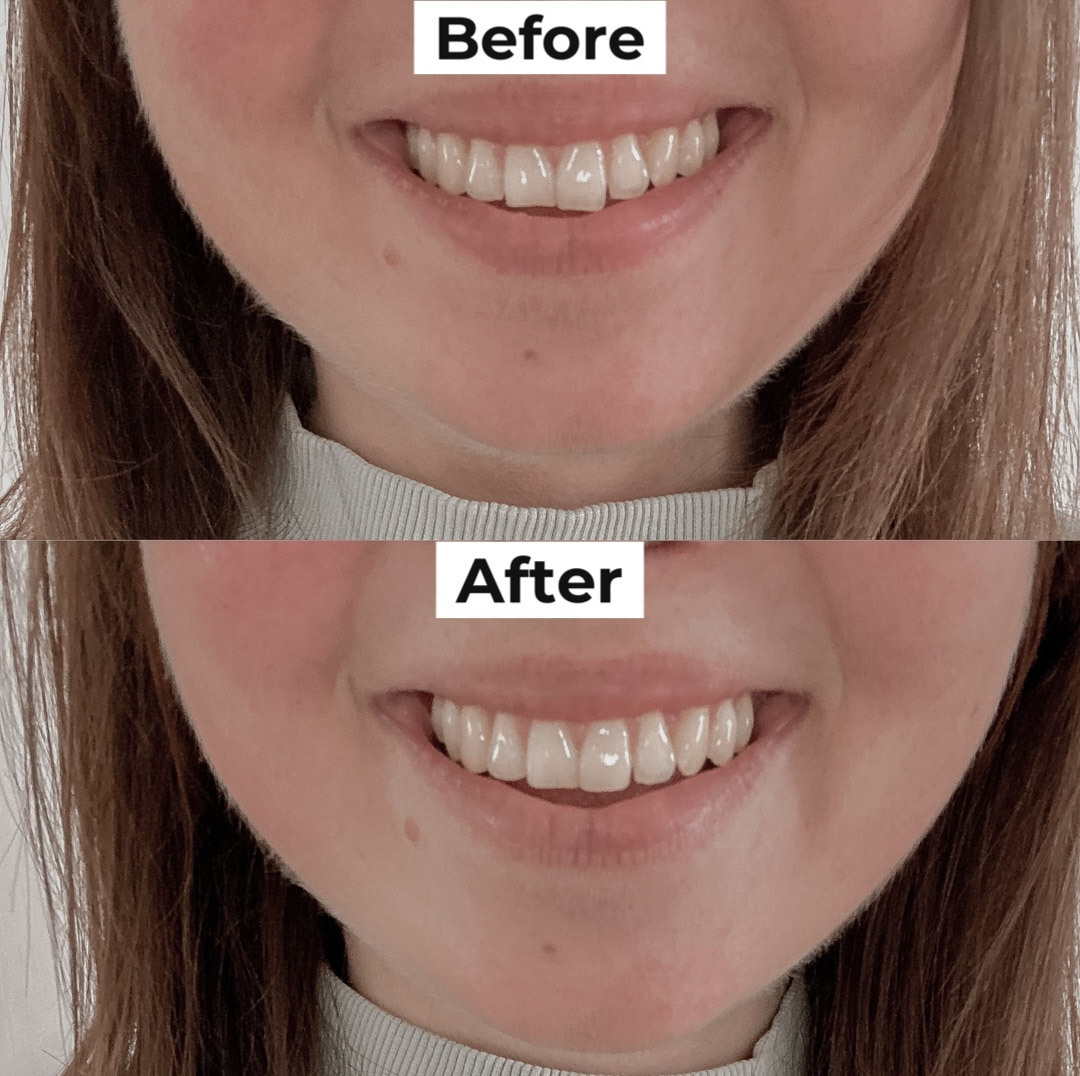 Teeth Contouring: My Experience