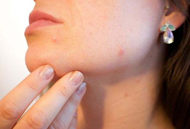 Acne or Pimples treatments and acne causes