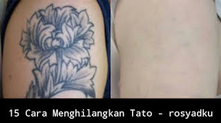 cara menghilangkan tato