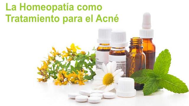 La homeopatía como Tratamiento para el Acné