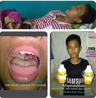 cara mengobati difteri