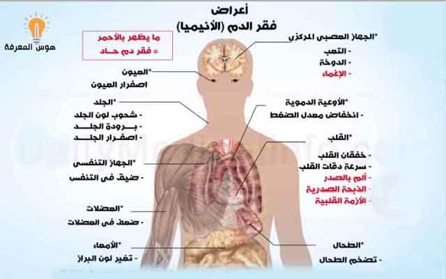 القياس طاعة Windswept اعراض فقر الدم عند الرجال Dsvdedommel Com