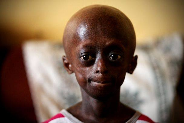 the death of Ontlametse Phalatse