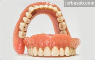 اسعار طقم الاسنان المتحرك في السعودية