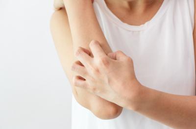 Beberapa Penyebab Alergi Kulit yang Harus Diwaspadai