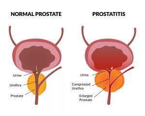 Az emberek kezelése Prostatitis)