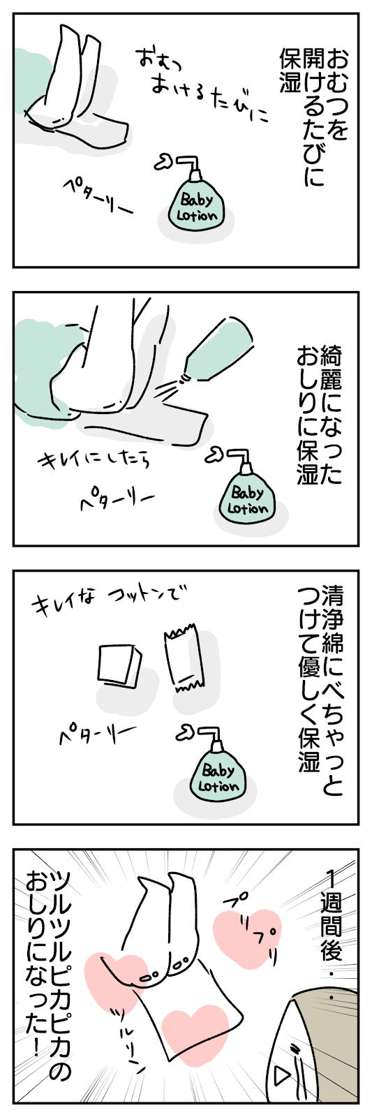 新生児のおむつかぶれ対策としておむつを開けるたびに保湿していたら赤ちゃんのお尻が綺麗になった4コマ漫画