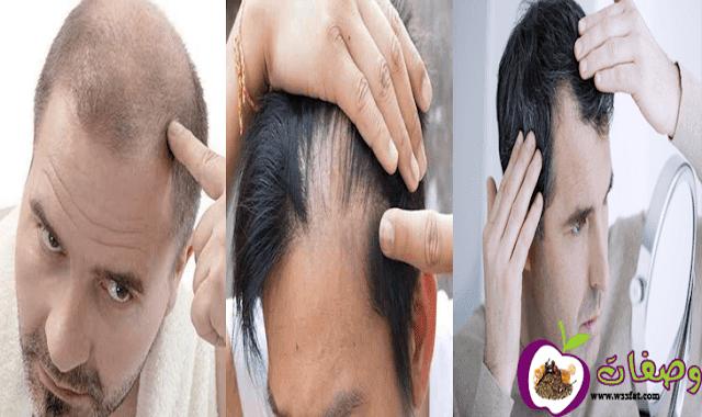 اسباب تساقط الشعر عند الرجال من الامام