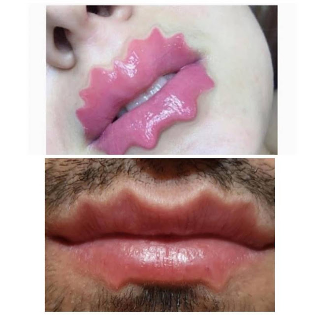 A new trend has been gaining momentum in social networks - users share photos of their lips in an unusual shape, accompanying the pictures with the hashtags #devilslips (devil's lips) #octopuslips (octopus lips).