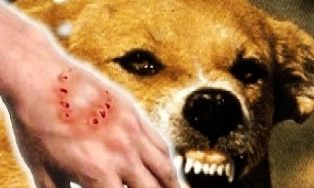 تونس خالية من داء الكلب لدى الإنسان